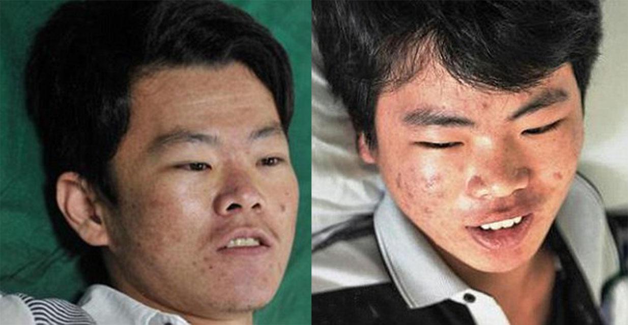 兩個兒子只能救一個!生死關頭腎衰兄弟卻相讓媽媽捐出的救命腎臟!