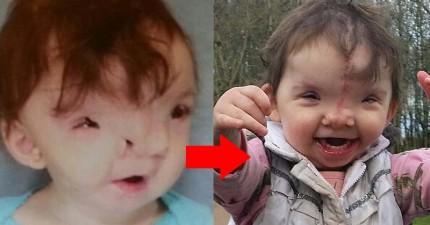 這個2歲的小女孩天生臉部嚴重畸形,但居然靠3D列印技術還給她一個完整的笑容!