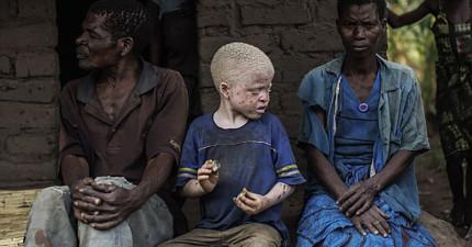 這些白化症患者在東非被動物一樣被獵殺,全因為未發展國家的迷信!