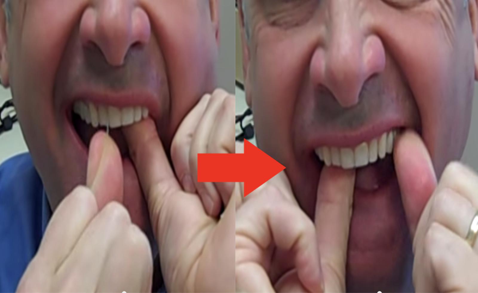 這名牙醫說大多數人用牙線方法都錯了,一點幫助都沒有。這才是正確的方法!