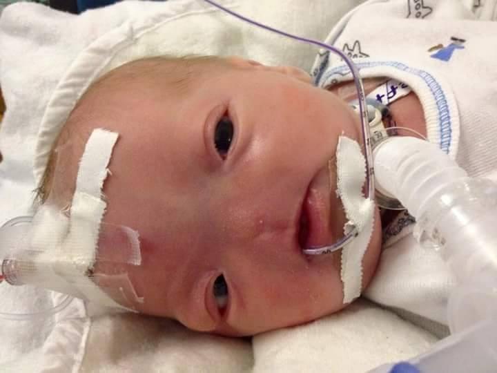 Eli的故事也在Facebook上頭廣為流傳,同時也有人為了他未來接踵而來的醫療費用募了款。