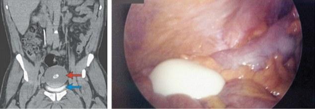 男子20年來一直頻尿,去醫院檢查才從體內取出了這顆「滷蛋」!切開來看真的太詭異了...
