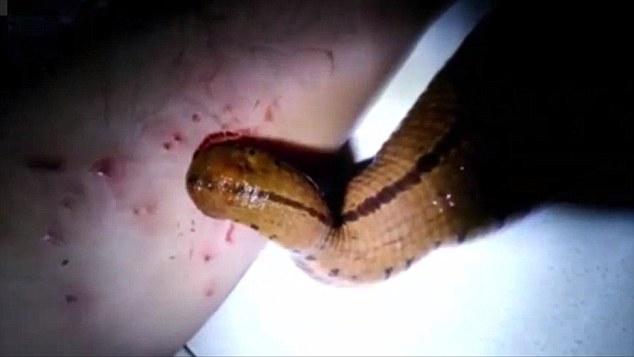 這名男子的可愛寶貝寵物一點都不可愛,而且還會一天到晚吸他的血!
