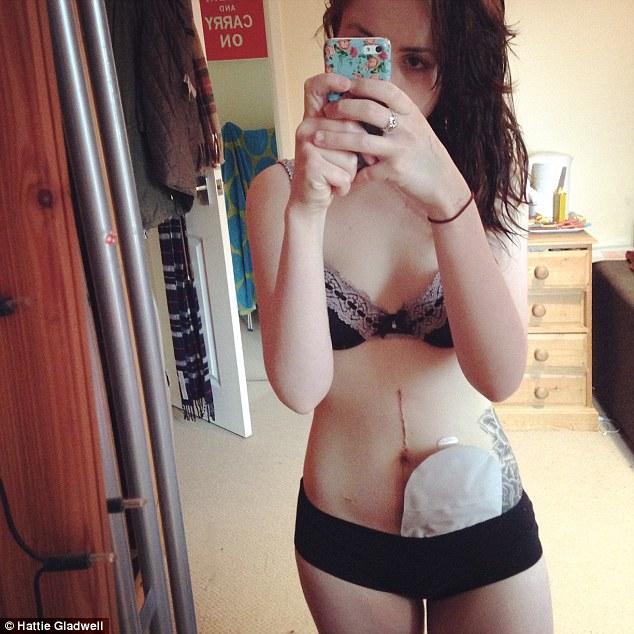 這名19歲美少女因大腸炎被迫肚子開洞掛排泄袋子,但看她怎麼去勇敢面對這一切!
