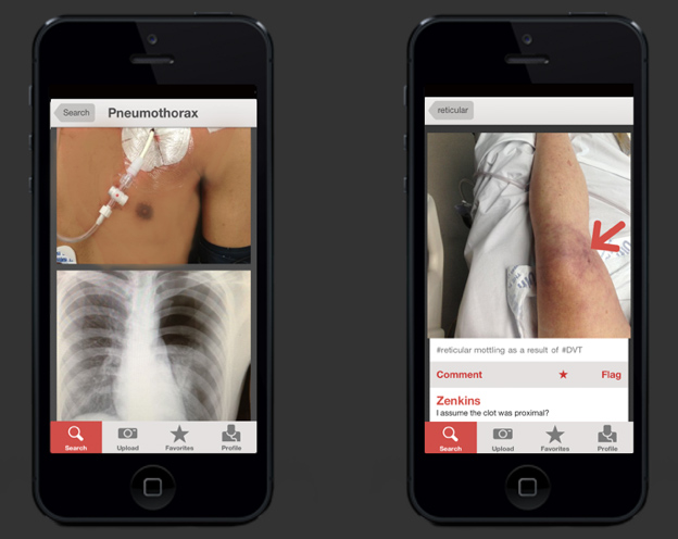 這個醫生專用的「病例照片分享APP」可怕到普通人應該無法看超過5張照片!
