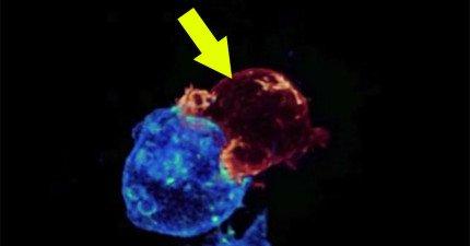 科學家清楚拍下我們體內龐大殺手軍團「殺戮癌細胞」的罕見畫面。