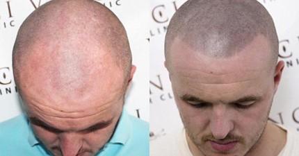 這兩個人是同個人,而且看近一點,右邊那個其實也是禿頭!