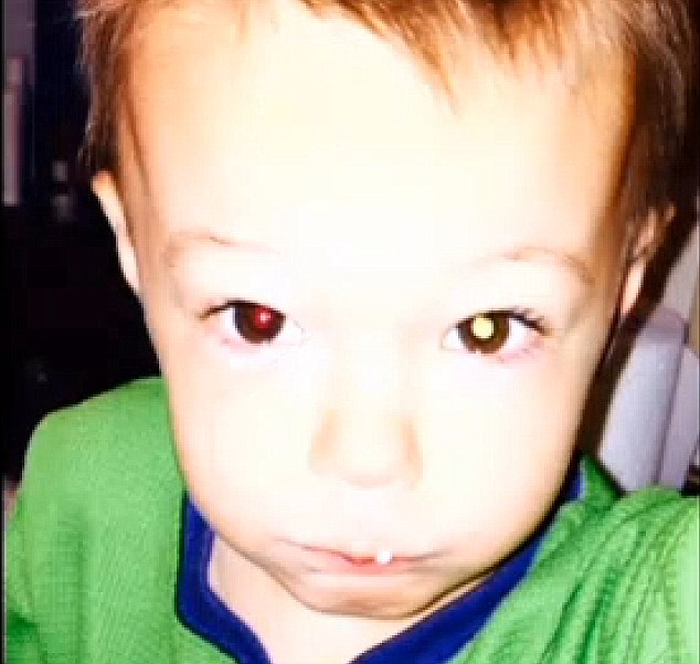 這名母親幫2歲兒子拍了這張照片,但沒想到這張照片居然救了他的命!