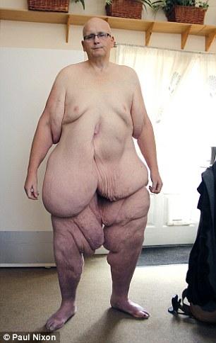 這位重445公斤的世界最胖男子動切除手術瘦下來了,從他身上切下的累贅看得讓人太心驚膽跳了!