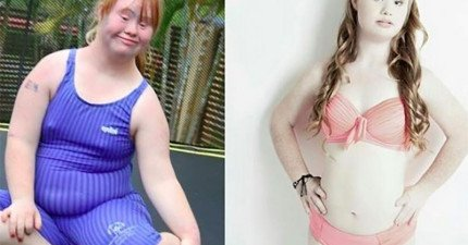 醫生曾說這位唐氏症孩子終身將一事無成,但她之後做的努力成為一名模特兒會讓你愛上她!