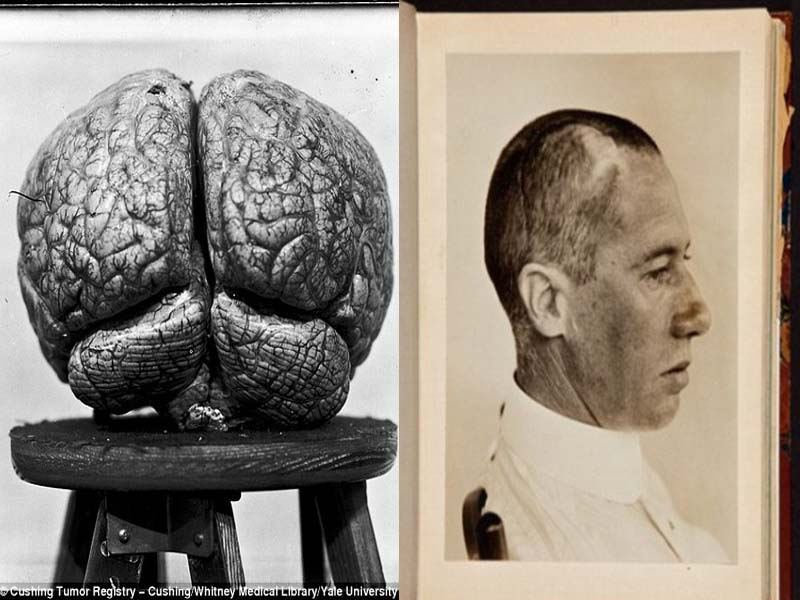 耶魯大學深藏老舊「大腦手術病患照片」的昏暗地下室,是所有學生都不敢去的地方。