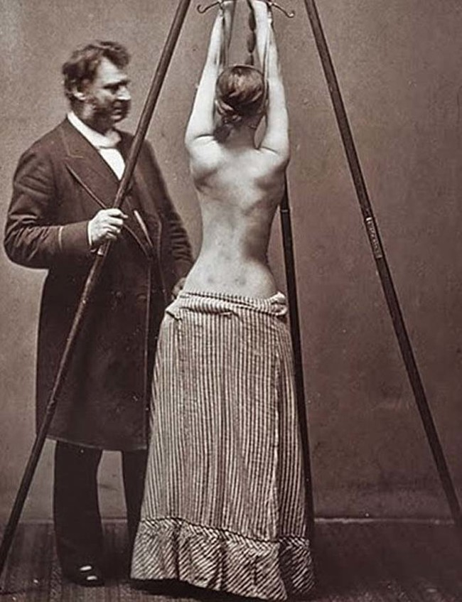 This isn't a scene from <em>50 Shades Of Grey --- </em>it's actually how they used to treat scoliosis.