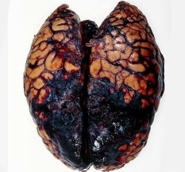 This is the ugly result of a deadly brain hemorrhage.