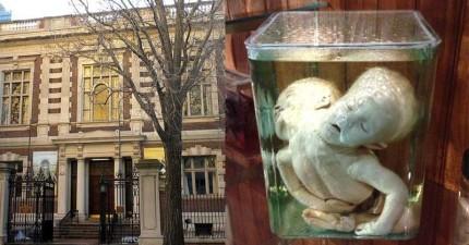 看似正常的大樓建築內部,卻是讓人止不住尖叫聲的全世界最可怕的博物館!連體死嬰、侏儒枯骨還有「愛因斯坦大腦切片」...