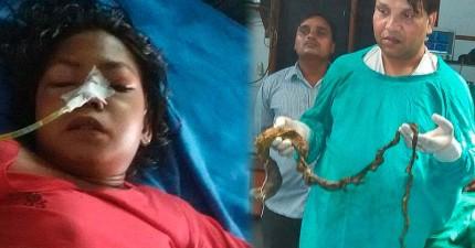 15歲女孩因不明原因不停嘔吐讓醫生也無解,直到從她體內取出了152公分長的頭髮。
