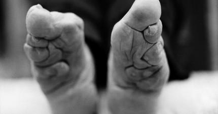 19張在世界上就快要消失的「最後一代裹小腳女性照片」,女生看完後會超慶幸自己生在現代。