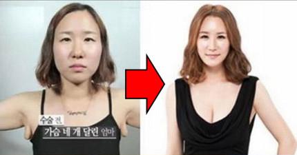 看完這8張韓國女孩整型前後照片,我開始相信迪士尼公主的神奇魔法都是真實存在的。