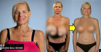 女子胸部裡20年前的3000cc填充物爆掉差點害死她,爆掉的樣子真的太驚悚了!