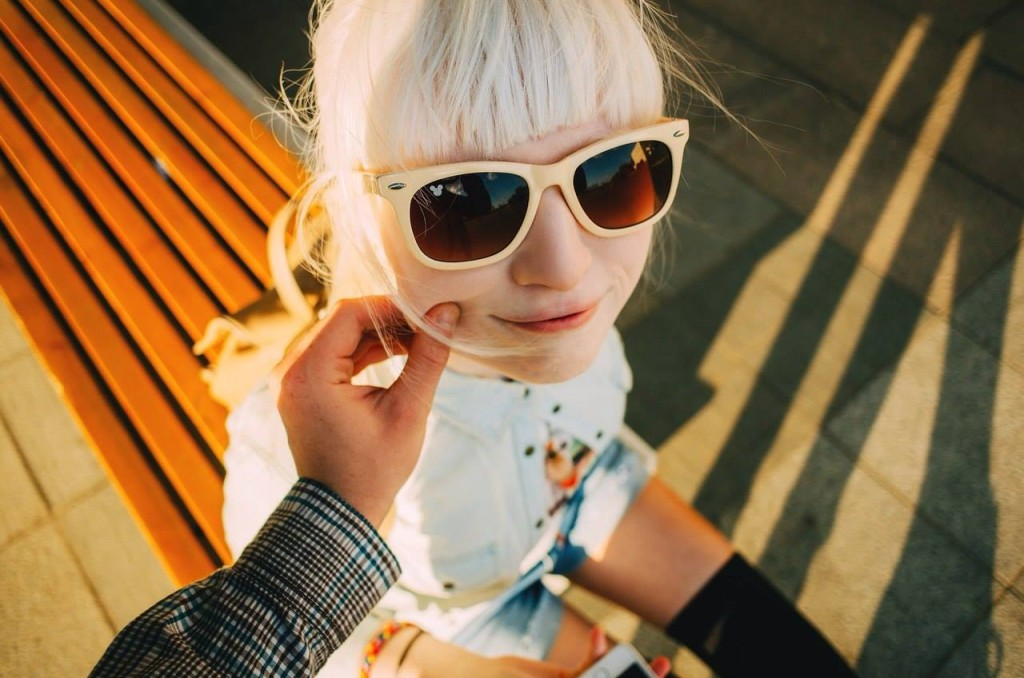 這位俄羅斯少女曾因為白化症而遭歧視,但勇敢站上舞台後「潔白夢幻外貌」卻意外驚艷了全世界!