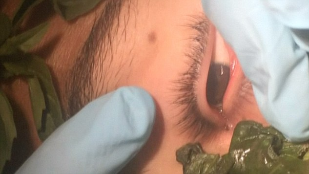 2959282700000578-3110693-Doctors_lured_the_worm_from_the_17_year_old_s_eye_with_basil_as_-m-3_1433412085384