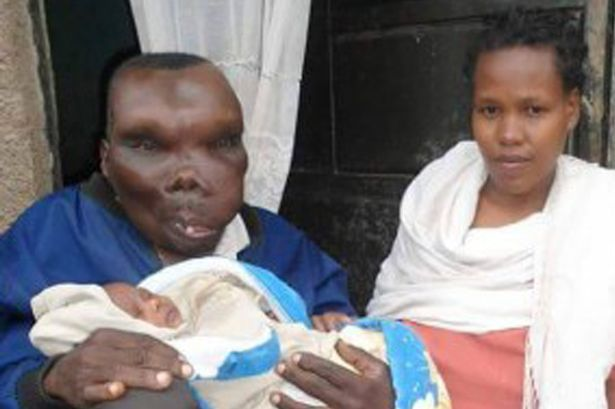 「烏干達最醜男人」與第二任老婆迎接第8胎,會讓你看清人真不可貌相!
