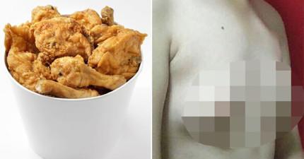 這個男子最愛「每天吃炸雞翅」,結果卻發現長出了跟女生一樣的小B罩杯!