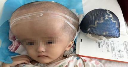醫生用「17個小時和3D列印出的頭顱」才救了這名頭腦漲大4倍女童的性命!