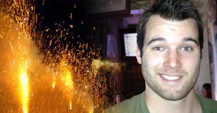 這名男子提議「在頭上放煙火」遭阻止,但在親友一不留神,他點燃了煙火...