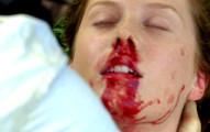 這個少女只是鼻血流不停,檢查後的結果竟然救了3條人命!