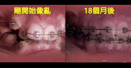 用20秒看完18個月矯正開始到結束的驚人細微變化過程。這會讓你想要馬上打電話給牙醫!