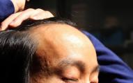 過了2018年以後,世界上就再不會有禿頭患者了!