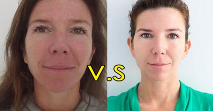 這名女人花了兩個小時與4萬塊嘗試最新醫美拉皮術的成果,讓我大喊這就是「逆齡奇蹟」啊!