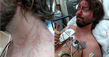 這名男子登山被雷擊中原本必死無疑,但他的狗卻犧牲救了他。