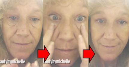 這位女士在短短「不到1分鐘」以內就讓浮腫眼袋消失無蹤了!