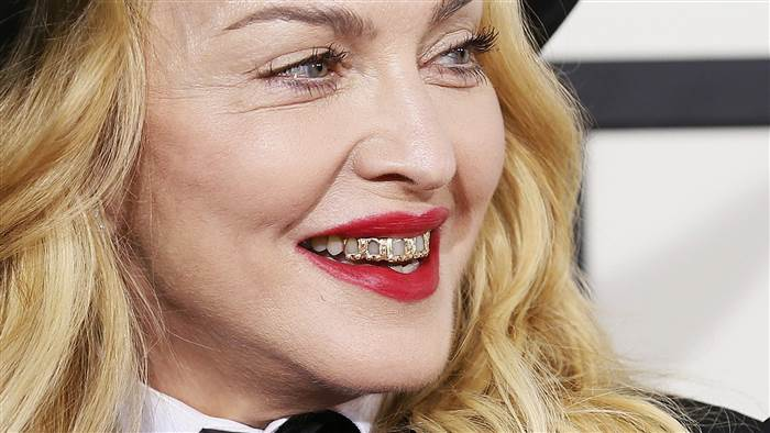 2D11438128-today-madonna-gold-grills-140125.today-inline-large