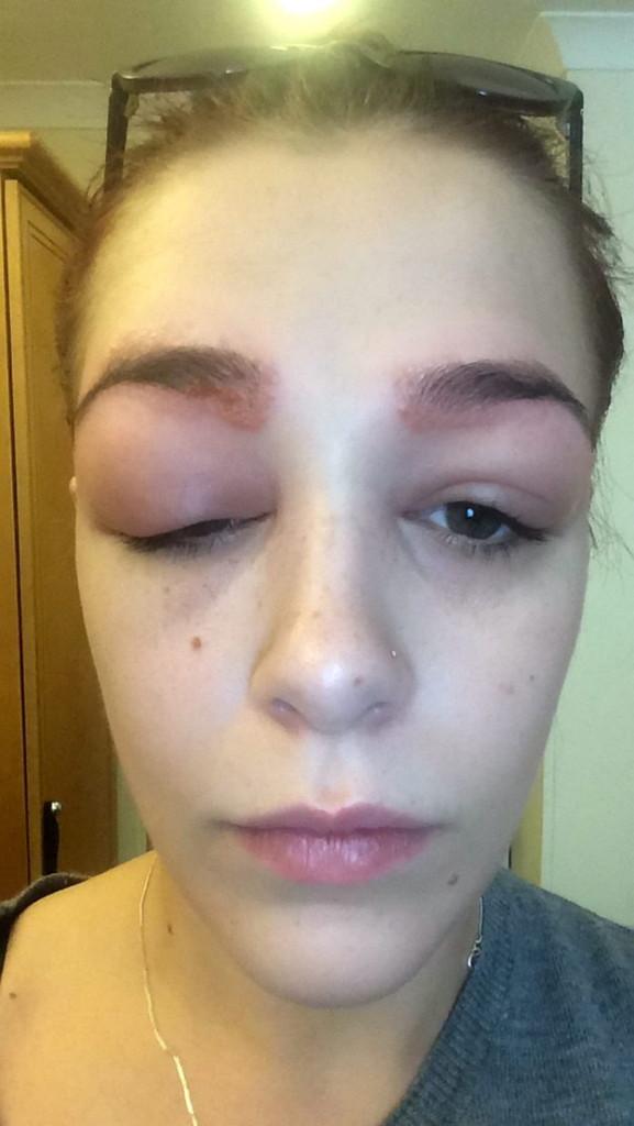 女孩希望動手術「讓眉毛變得更濃密」,結果卻毀容到可能讓她需要放棄明星夢...