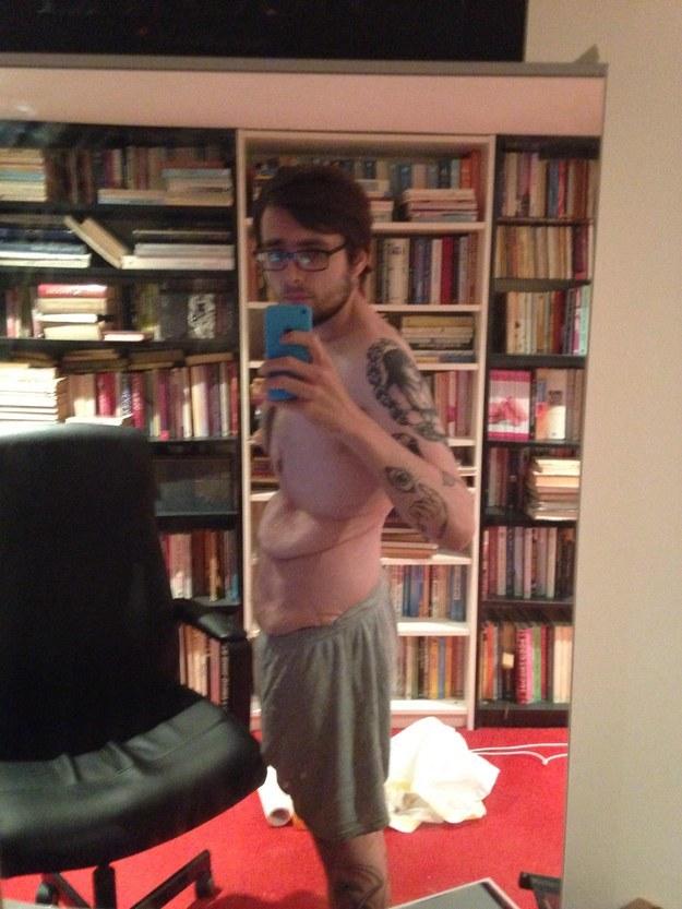 他減了118公斤後,就決定揭露自己一系列「贅皮」照來鼓勵更多人找回自信!