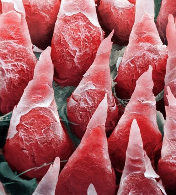 Here's the human tongue under a microscope - yikes.