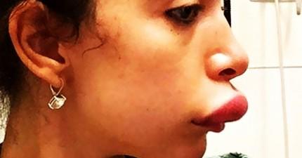 10個讓你深信「自然美最好啦」的豐唇失敗女名人。