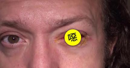 這個男子睡覺時忘記把隱形眼鏡拿下來了,結果隔天一隻眼睛就瞎了。