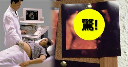 父母去給懷中嬰兒照了4D超音波,孩子直視鏡頭的「惡魔神情」完全嚇壞了眾人!