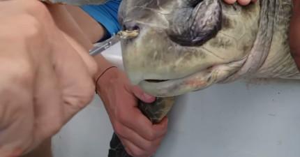 他們發現海龜鼻中卡了超長異物,用箝子拔出的痛楚畫面會讓你再也不敢亂丟垃圾!