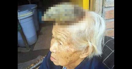 87歲老婦人用偏方治療頭上發癢的痣,沒想到因此養出一支獨角獸的角!