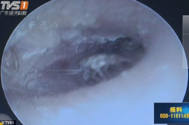醫生在這個男生的耳朵裡面找到了一整個家族的蟑螂!當全都拿出來的時候...*嘔吐*