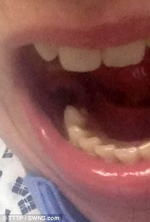 他為了得到「查寧坦圖」般完美笑容而使用牙齒美白產品,結果跑出多一個嘴巴...