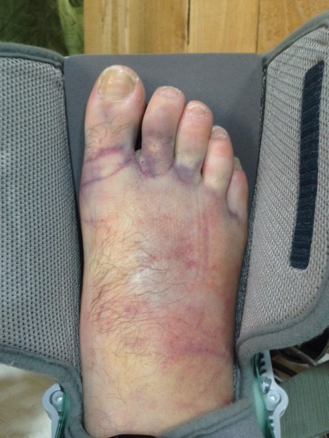 The swelling was just beginning to go down when he noticed a bump on the top of his foot.