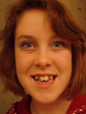 她曾因怪異齒顎被嘲笑是「怪物」,長大後那些取笑的人都希望能交往!