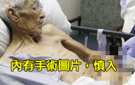 這個老人左手被嚴重燙傷而必須截肢,醫生為了救他一命竟然把他的手「縫在肚子裡」!