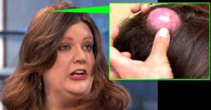 她頭上的「跟蛋一樣大的20年囊腫被擠爆」的片段已經讓很多觀眾都快吐昏了...