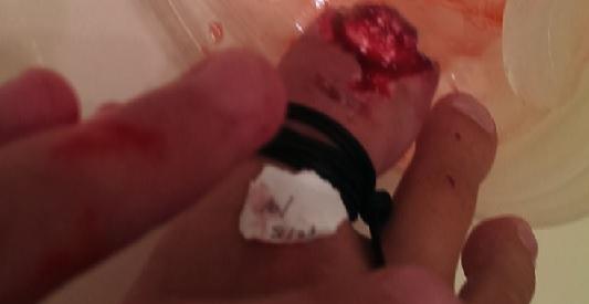 這名少年因為網友一句「砍掉重練」,竟然就真的把腳指頭砍掉了?!